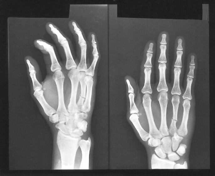 x ray of fractured hand